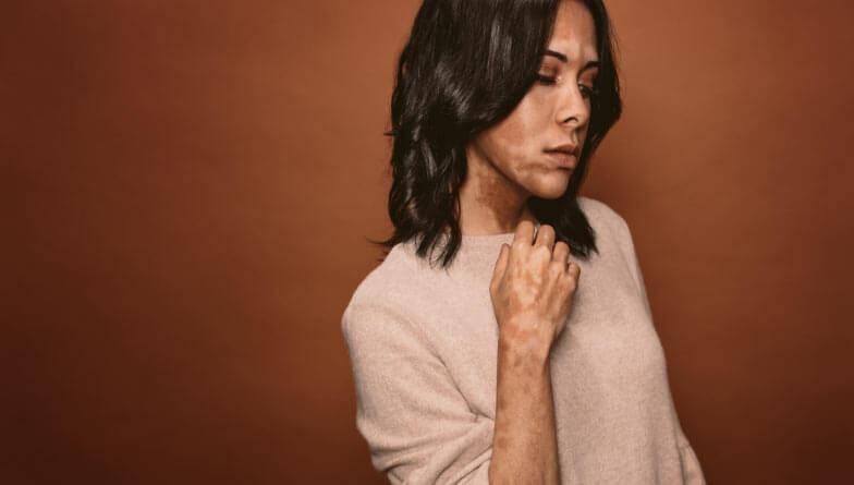 weißfleckenkrankheit vitiligo