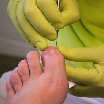 Nagelkorrektur bei eingewachsenen Fußnägeln