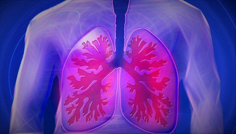 COPD Diagnose