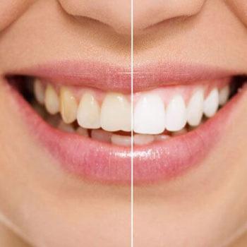 Bleaching von Zähnen